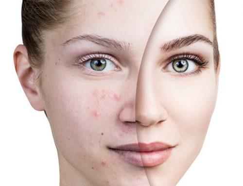 GEZOCHT! 🚨 Modellen met acne